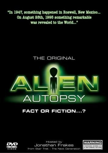 Alien Autopsy: (Fact or Fiction?) (1995) with English Subtitles on DVD on DVD